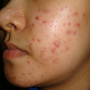 Acne Prevention What To Do And Not To Do